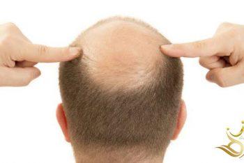 الرعايه والامور يجب أن تعرفها بعد زراعة الشعر