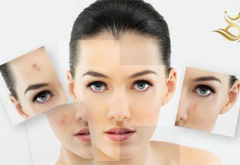روشهای جوانسازی پوست در مشهد