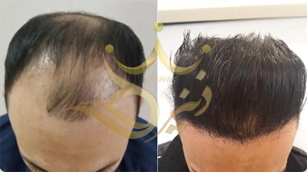 کاشت مو به روش FIT و مراحل آن