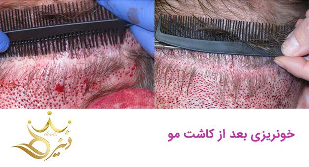 خونریزی بعد از کاشت مو