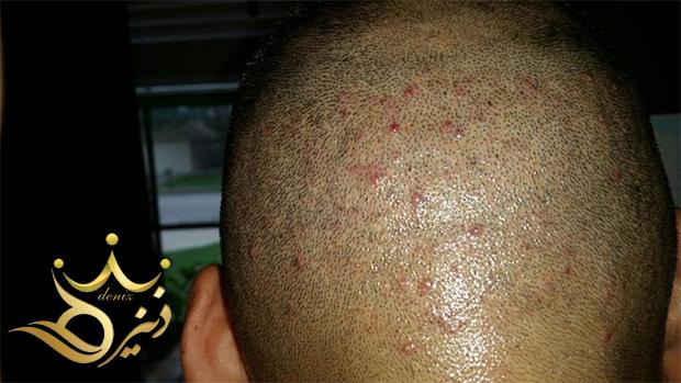 راههای درمان جوش بعد از کاشت مو
