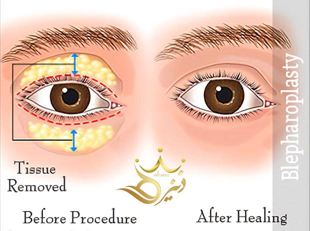 مراقبت های قبل و بعد از عمل بلفاروپلاستی