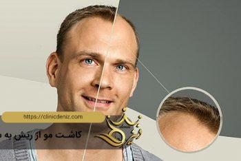 کاشت مو از ریش به سر