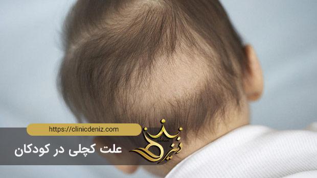 علت کچلی در کودکان